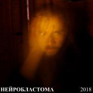 Нейробластома - Верхом на молнии (Original Mix)