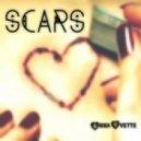 Anna Yvette - Scars (Original mix)